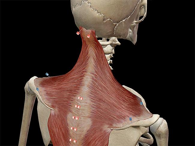 Trapezius-occipital-ligamentum-nuchae-clavicle-acromion