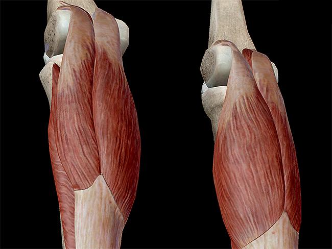 triceps surae achilles tendon gastrocnemius