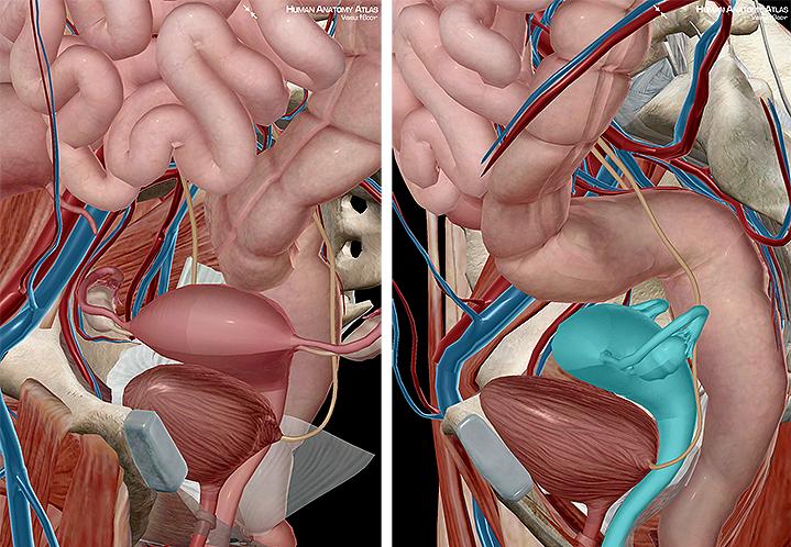 uterine gonads ovum fimbriae fallopian tubes