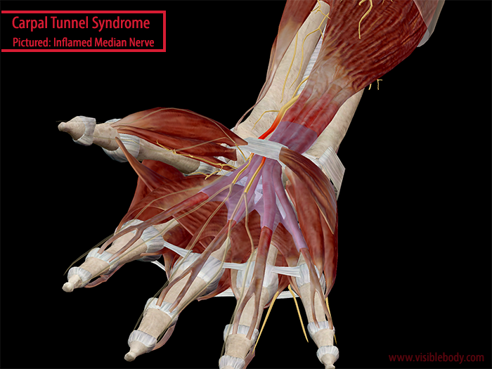 Carpal-Tunnel-Median-Nerve-Flexor-Digitorum-Wrist.png