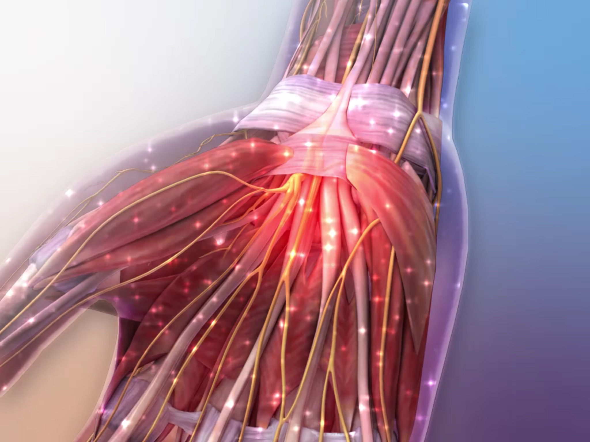 Animation still of Carpal Tunnel Syndrome