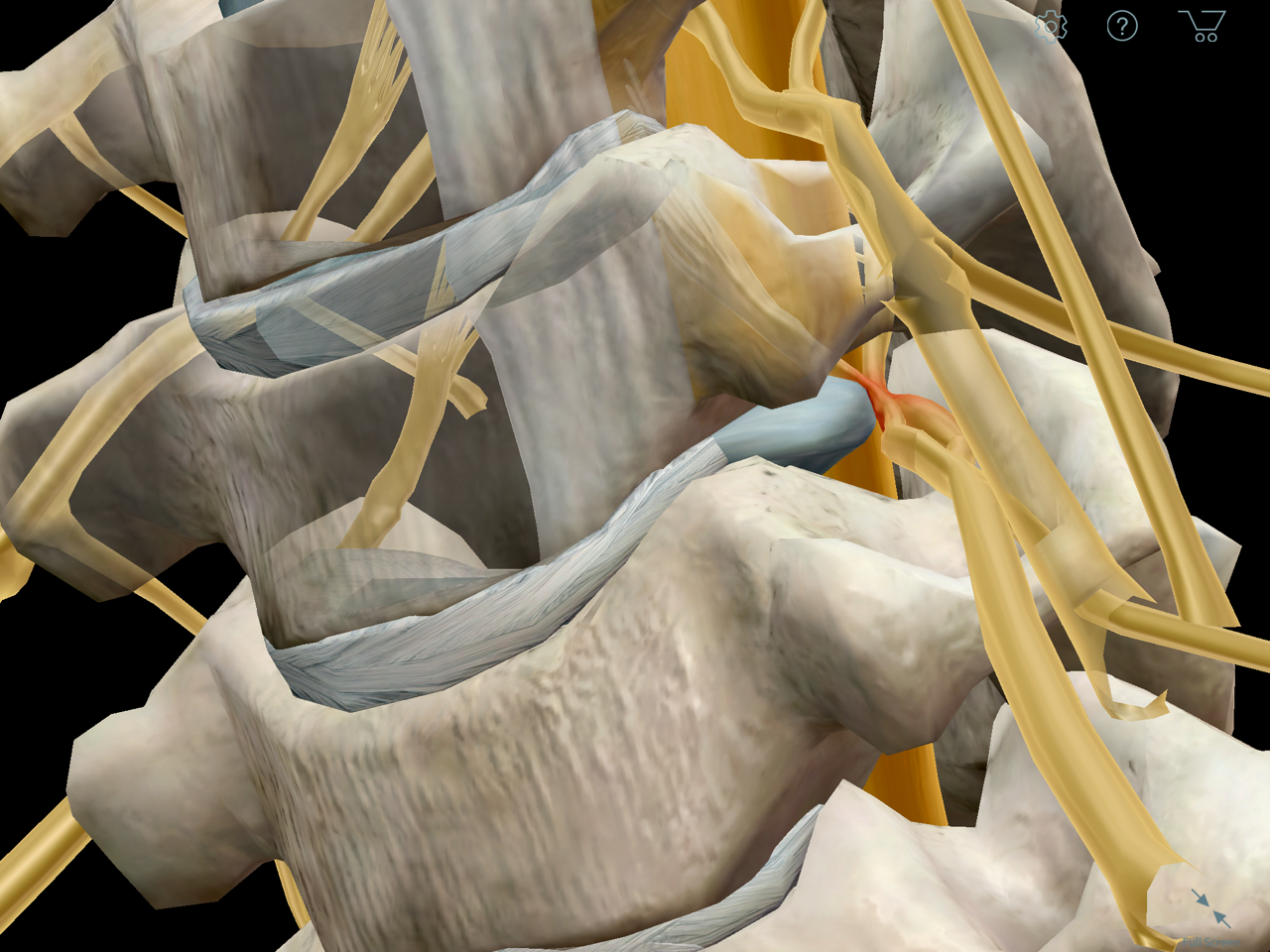 Cervical radiculopathy -- a pinched nerve
