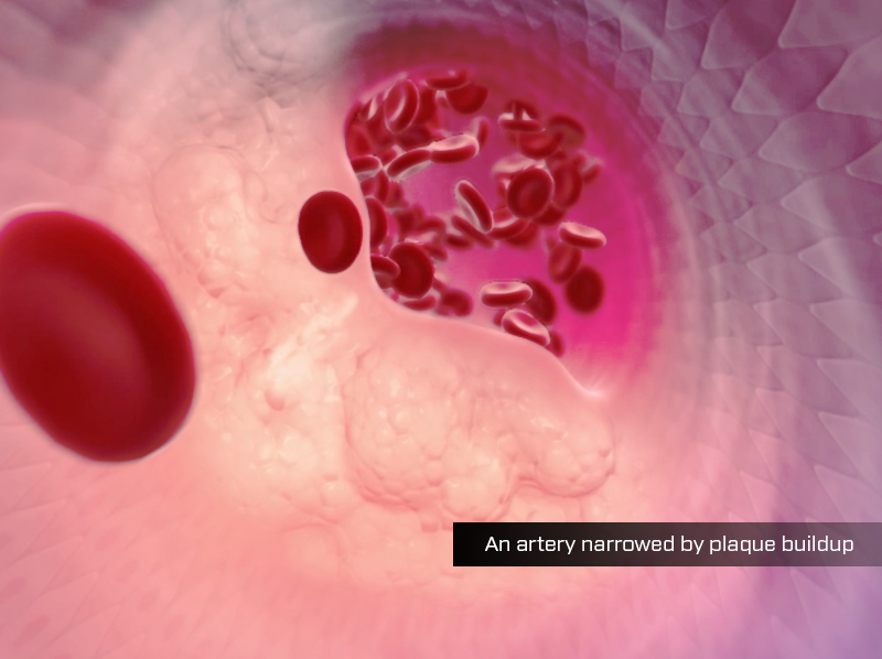 An artery narrowed by plaque buildup, showing atherosclerosis