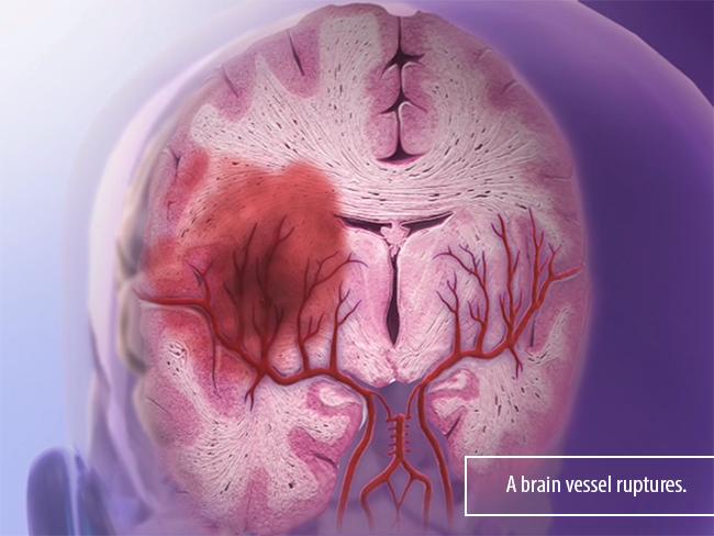 Hemorrhagic-Stroke-blood-vessel-aneurysm