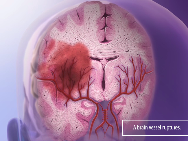 Hemorrhagic-Stroke-blood-vessel-aneurysm